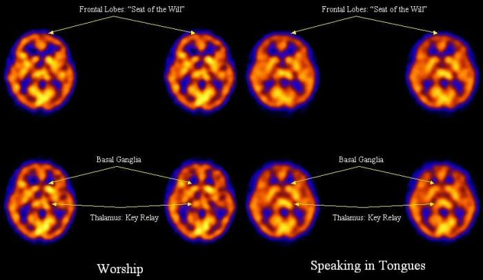 上图:2006年,宾夕法尼亚大学医学院的研究人员对在敬拜时(左)与说舌音(右)时的受试者进行了SPECT扫描。发现说舌音者的额叶(Frontal Lobes)活动减少,表示受到某种控制。与集中注意力和情绪反应有关的左基底神经节(left basal ganglia)的活动也减少。